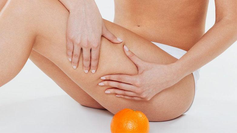 Celulitis: qué es, causas, grados y tratamientos - Blog - Farmacia Sarasketa
